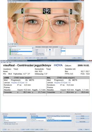 A szemészeti szűrővizsgálat a fentiek mellett tartalmazza: