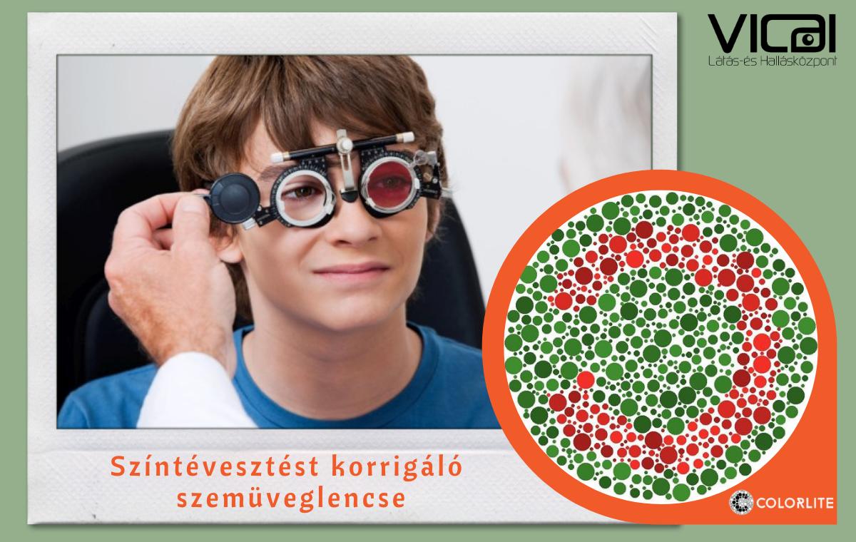 Színtévesztést korrigáló látásvizsgálat